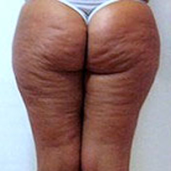 Contouring Body Cellulite Treatment