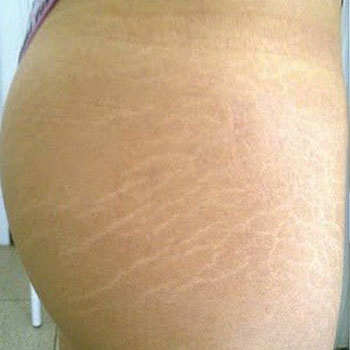 Contouring Body Images Stretch Mark Treatment